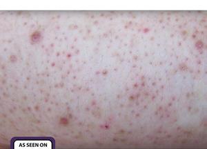SkinBase